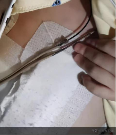 福建四岁女童被生父殴打致回肠破裂,当地妇联:已提供援助